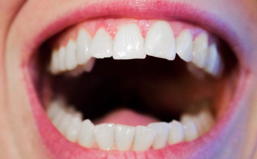 Dzisiejsza technika stosowana w salonach stomatologii estetycznej zdoła sprawić, że odbierzemy ładny uśmieszek.